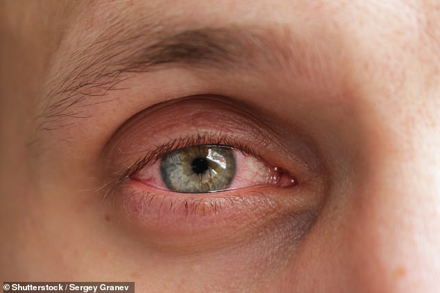 Swollen, red and itchy eyes are very common in people of all ages, and especially those with allergies and asthma. (File photo)