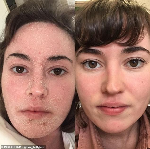 Holly Broome,whose body was left red raw due to eczema, has made a dramatic recovery by ditching steroid creams and showering just once a week. She is pictured a year apart