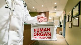 Doctor taking a human organ for transplant
