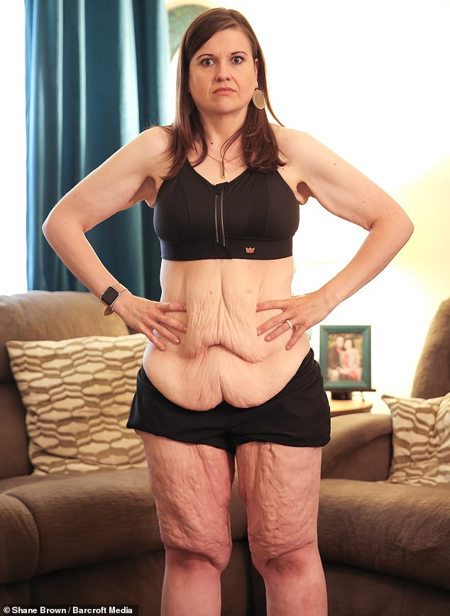 Catherine Shanklin, from Oklahoma City, who once weighed 420lbs, revealed she's been left with an estimated 20lbs of excess skin since overhauling her lifestyle