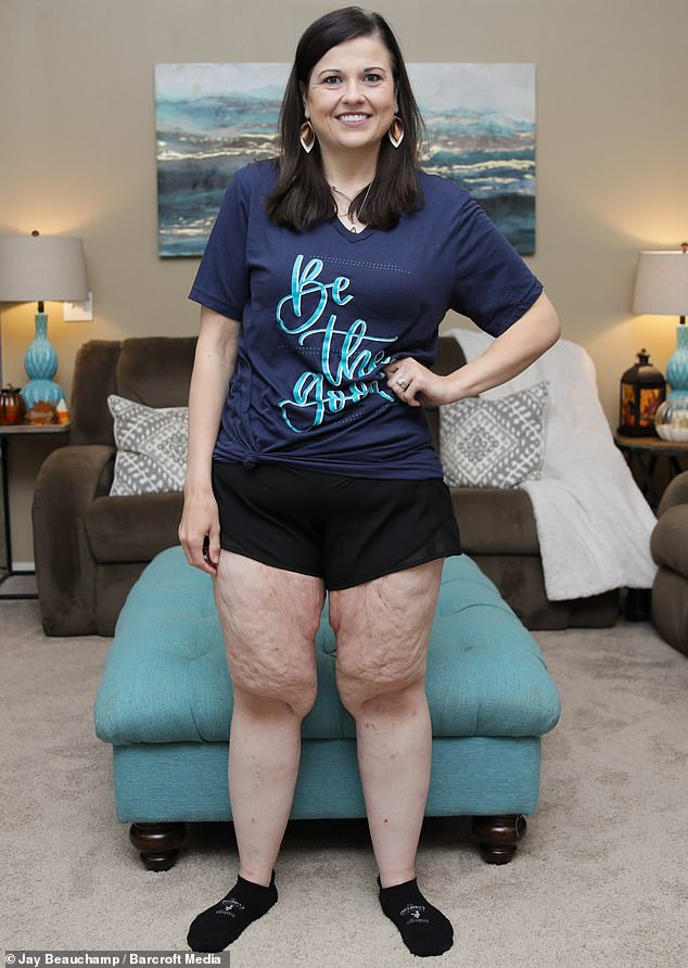 Catherine, who suffered from conditions includingpolycystic ovaries and immune disorders, defied doctors advice to havegastric bypass surgery instead losing 260lbs entirely naturally