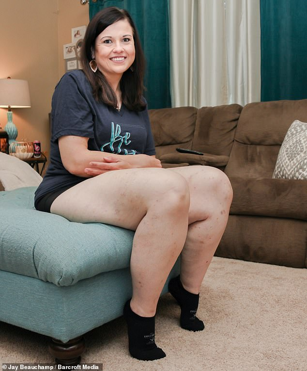 Catherine believes anyone can achieve weight loss, but it takes finding that fight